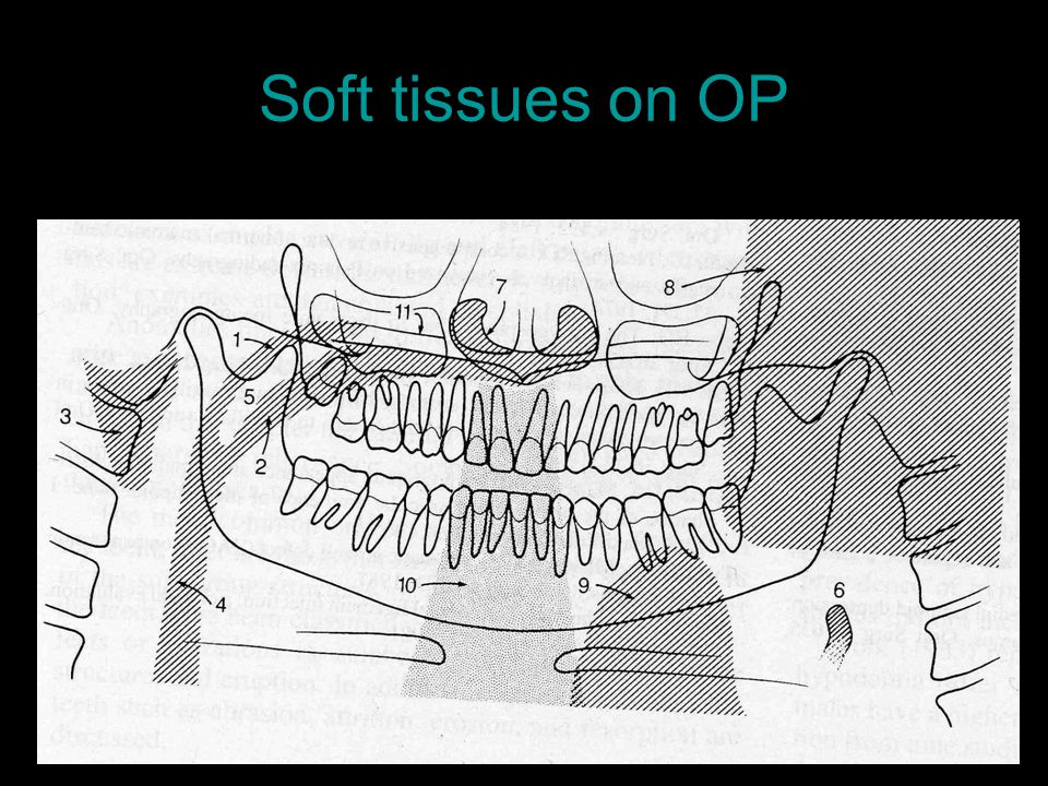 Soft tissues on OP