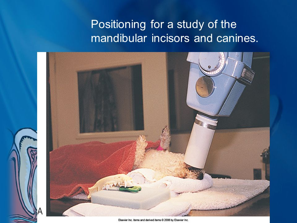 Positioning for a study of the mandibular incisors and canines.