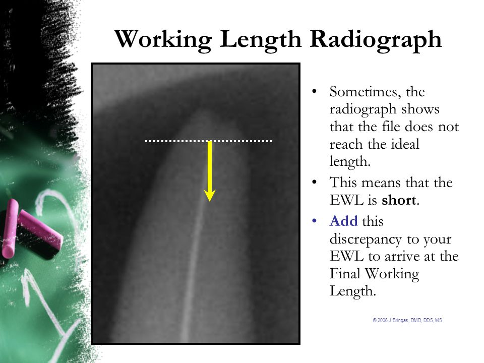 © 2006 J.Bringas, DMD, DDS, MS Working Length Radiograph