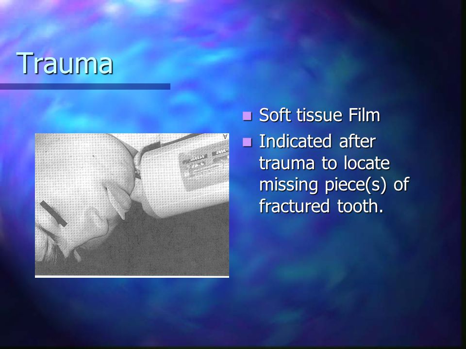 Trauma Soft tissue Film Indicated after trauma to locate missing piece(s) of fractured tooth.
