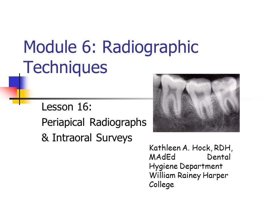 Module 6: Radiographic Techniques Lesson 16: Periapical Radiographs & Intraoral Surveys Kathleen A. Hock, RDH, MAdEd Dental Hygiene Department William