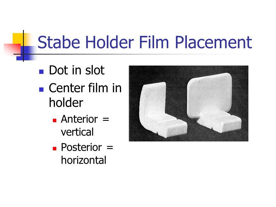 Stabe Holder Film Placement Dot in slot Center film in holder Anterior = vertical Posterior = horizontal