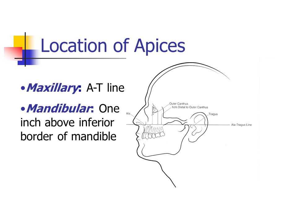Location of Apices Maxillary: A-T line Mandibular: One inch above inferior border of mandible