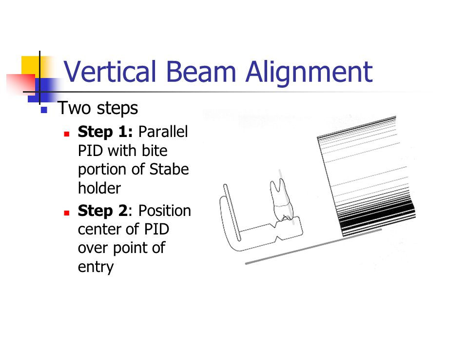 Vertical Beam Alignment Two steps Step 1: Parallel PID with bite portion of Stabe holder Step 2: Position center of PID over point of entry