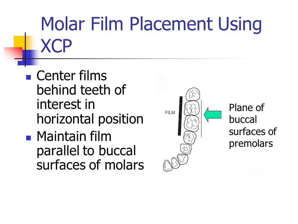 Molar Film Placement Using XCP Center films behind teeth of interest in horizontal position Maintain film parallel to buccal surfaces of molars Plane