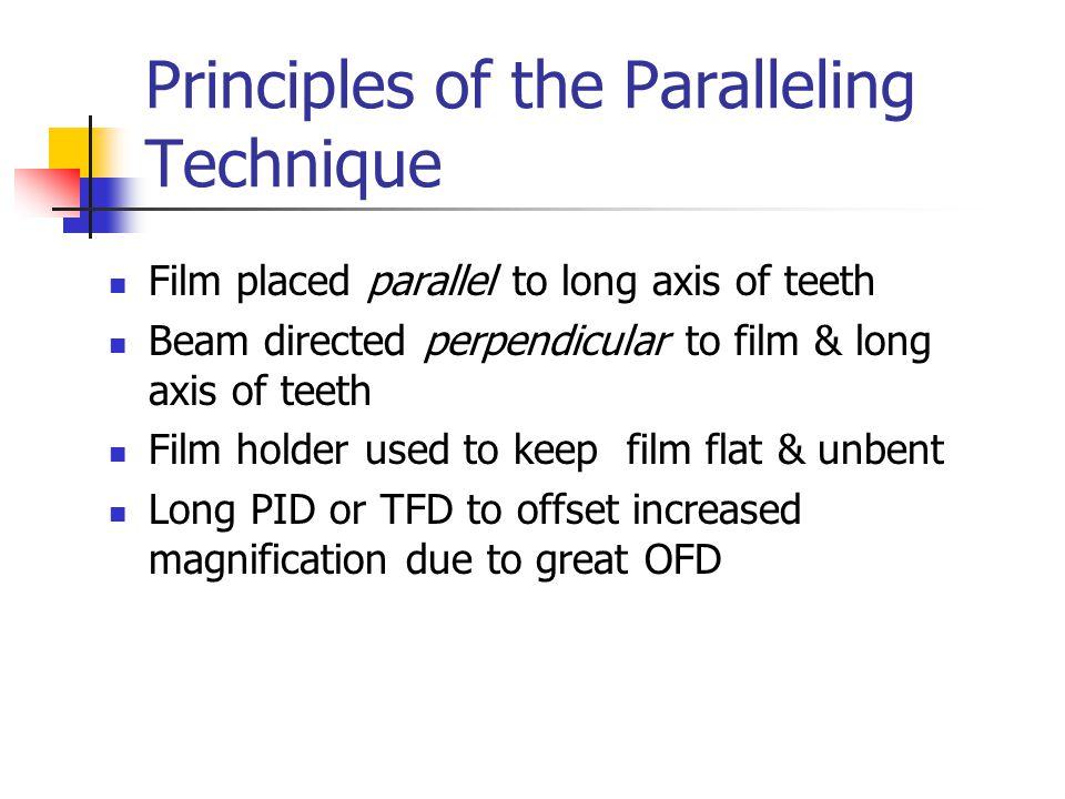 Molar Interproximal Using Loops/Tabs Center films behind teeth of interest in vertical position