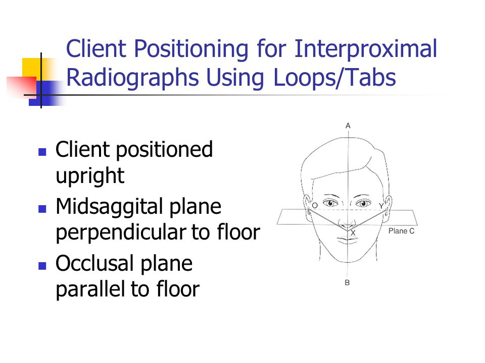 Client Positioning for Interproximal Radiographs Using Loops/Tabs Client positioned upright Midsaggital plane perpendicular to floor Occlusal plane pa