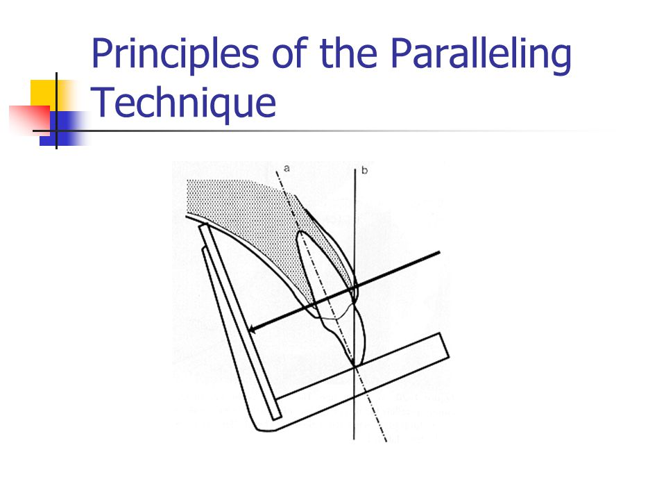 Steps of the Paralleling Technique Film placement Film position Vertical dimension Parallel to long axis Two-point contact Horizontal dimension Beam alignment Vertical Horizontal Film exposure