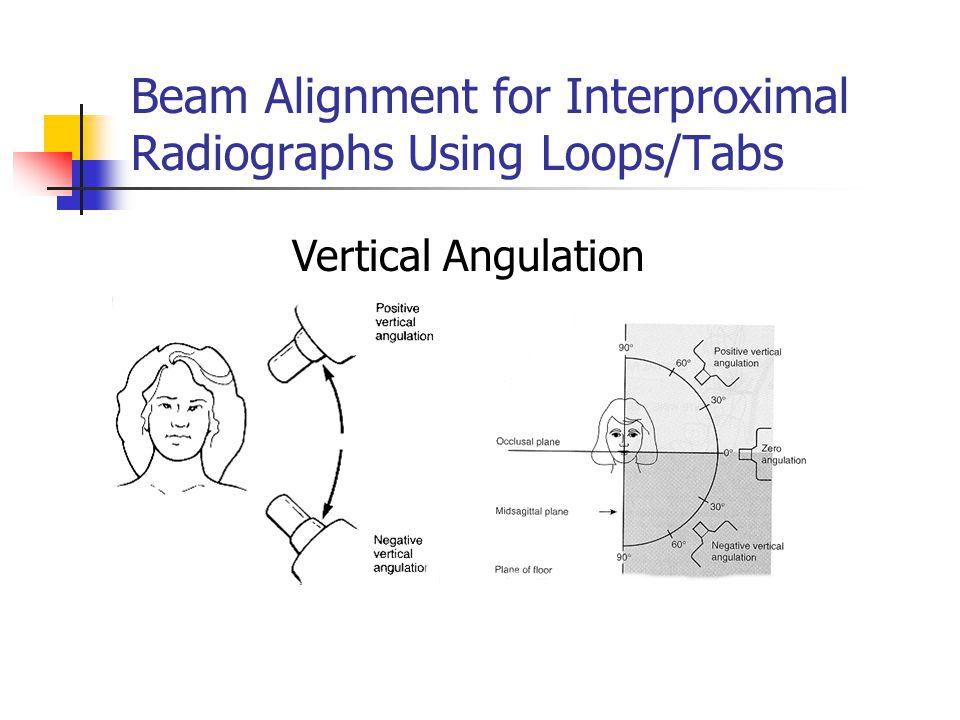 Beam Alignment for Interproximal Radiographs Using Loops/Tabs Vertical Angulation
