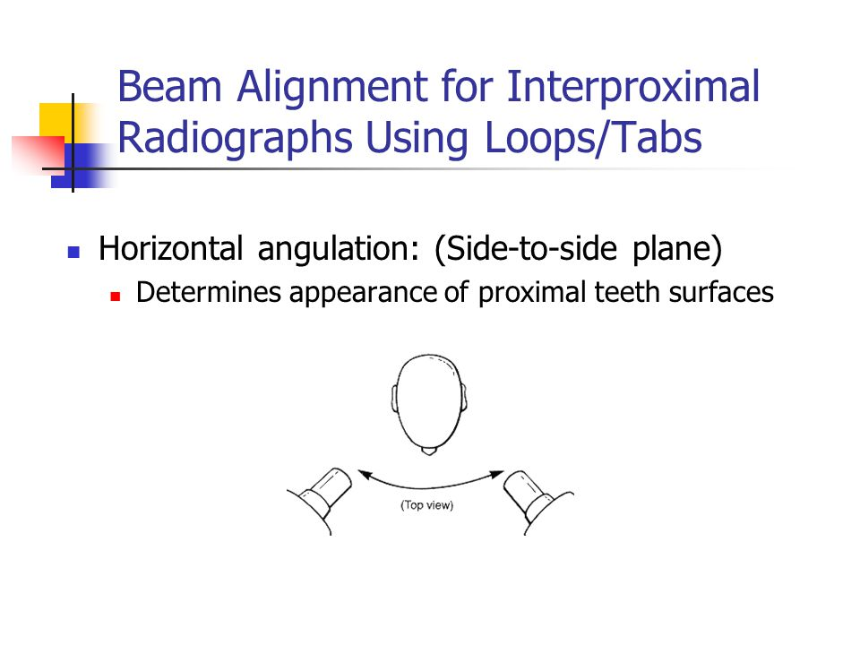 Beam Alignment for Interproximal Radiographs Using Loops/Tabs Horizontal angulation: (Side-to-side plane) Determines appearance of proximal teeth surf