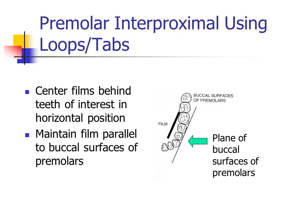 Premolar Interproximal Using Loops/Tabs Center films behind teeth of interest in horizontal position Maintain film parallel to buccal surfaces of prem