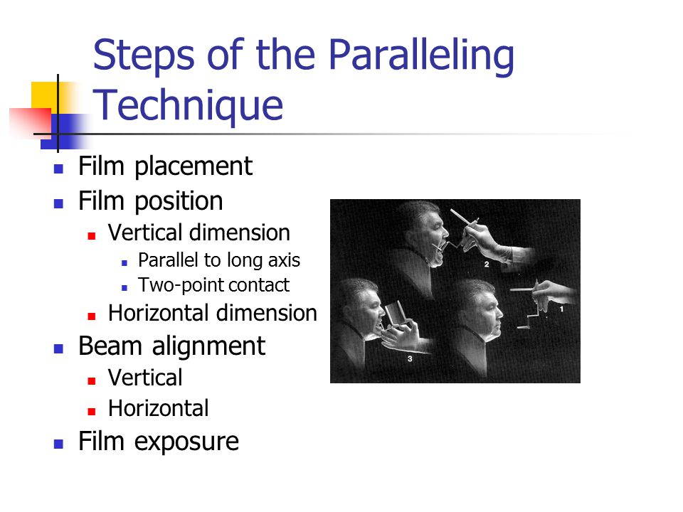 Steps of the Paralleling Technique Film placement : position film to cover prescribed area (teeth to be examined )