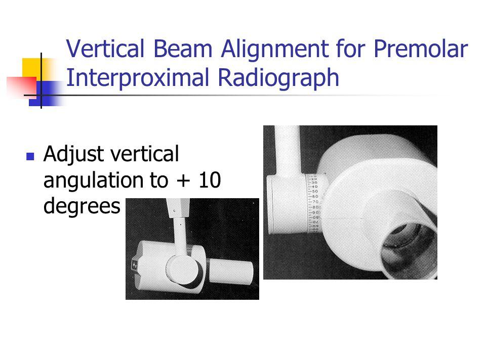 Vertical Beam Alignment for Premolar Interproximal Radiograph Adjust vertical angulation to + 10 degrees