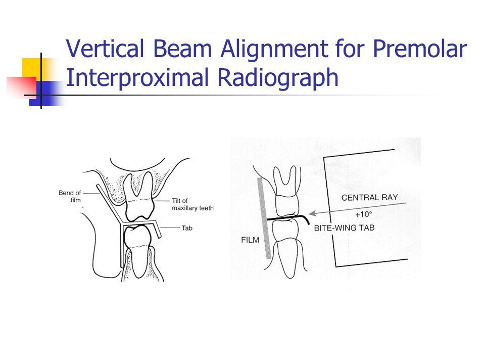 Vertical Beam Alignment for Premolar Interproximal Radiograph