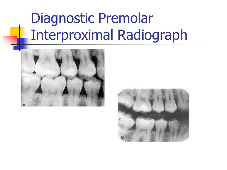 Diagnostic Premolar Interproximal Radiograph