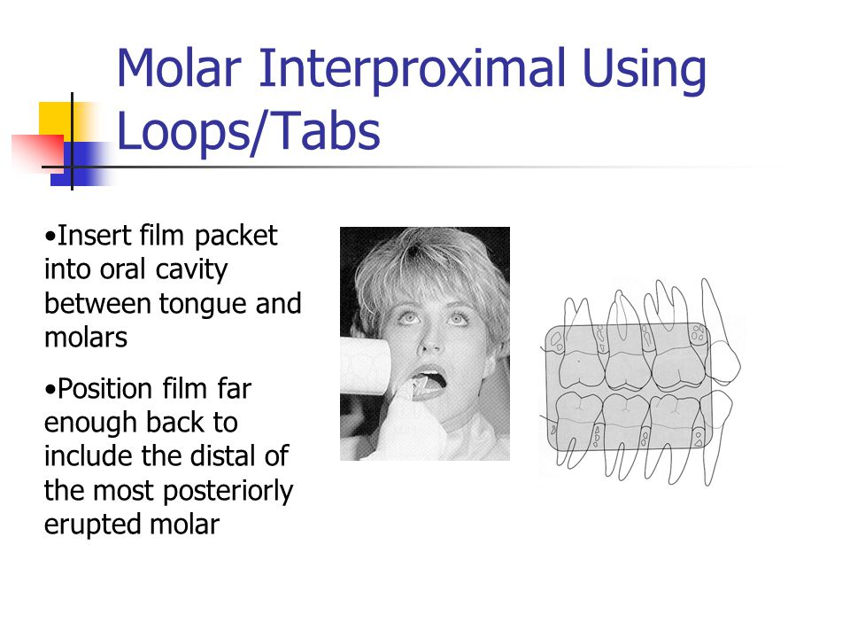 Molar Interproximal Using Loops/Tabs Insert film packet into oral cavity between tongue and molars Position film far enough back to include the distal