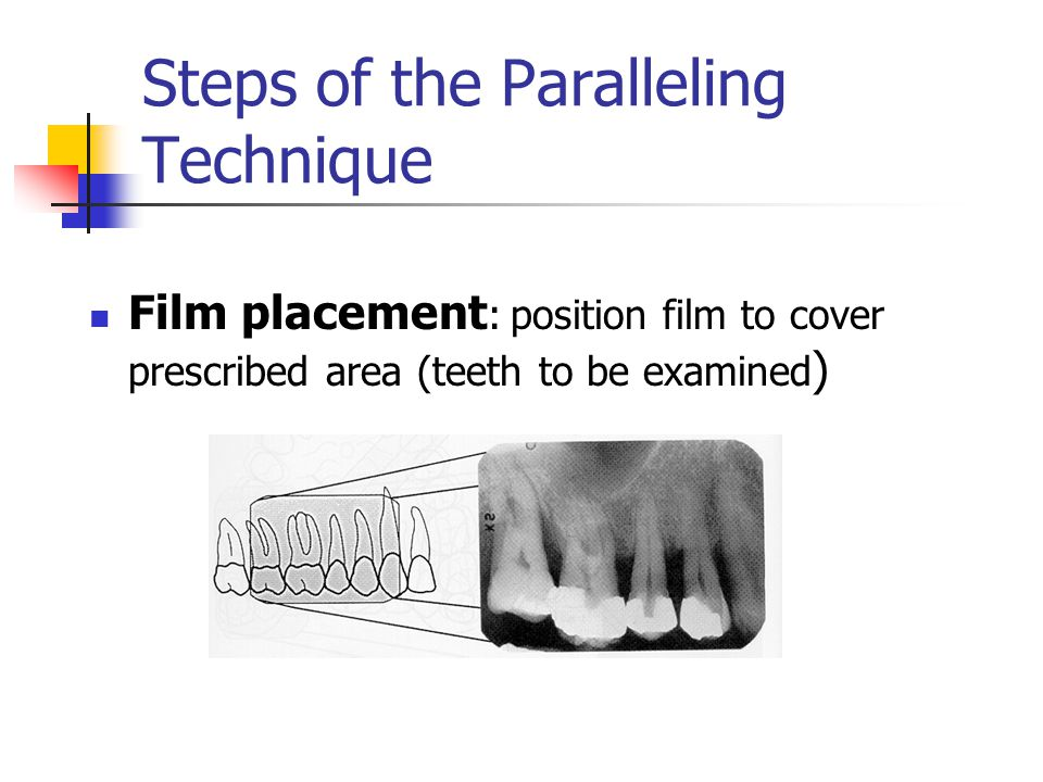 Film Placement for Interproximal Radiographs Using Loops/Tabs No specific location for dot Center films behind teeth of interest