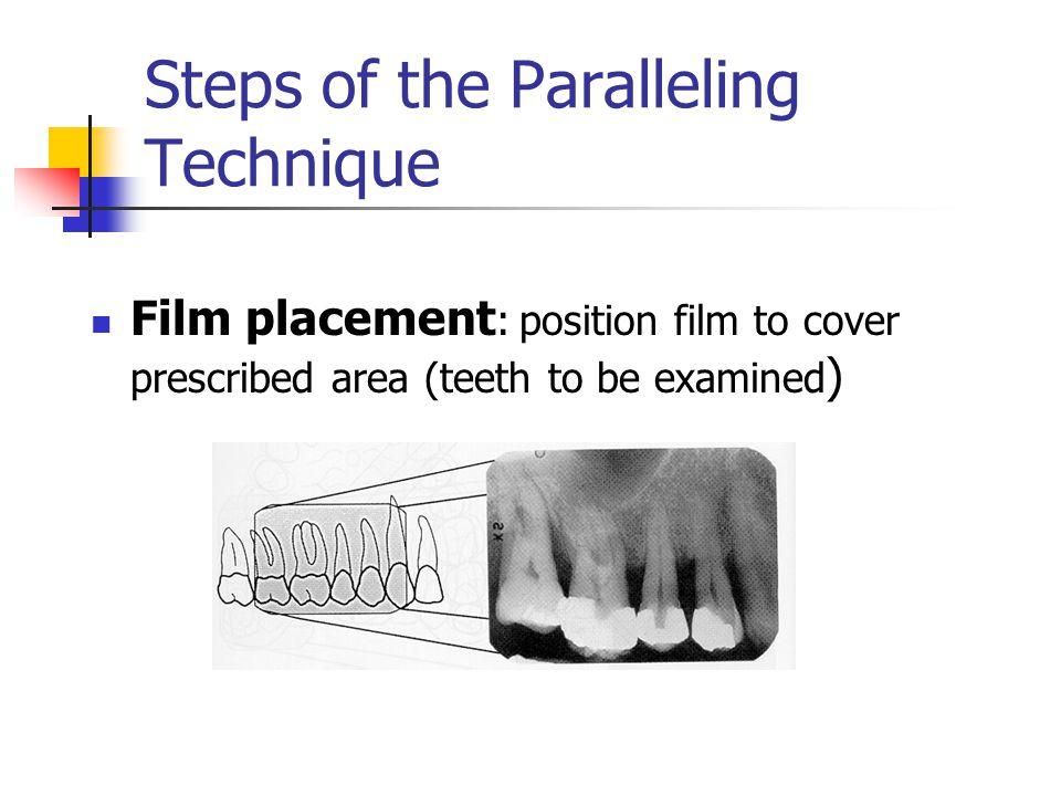 Client Positioning Midsaggital plane perpendicular to floor Maxillary occlusal plane parallel to floor for maxillary films Mandibular occlusal plane parallel to floor for mandibular films