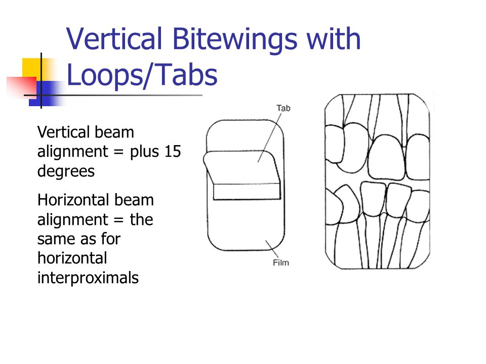Vertical Bitewings with Loops/Tabs Vertical beam alignment = plus 15 degrees Horizontal beam alignment = the same as for horizontal interproximals