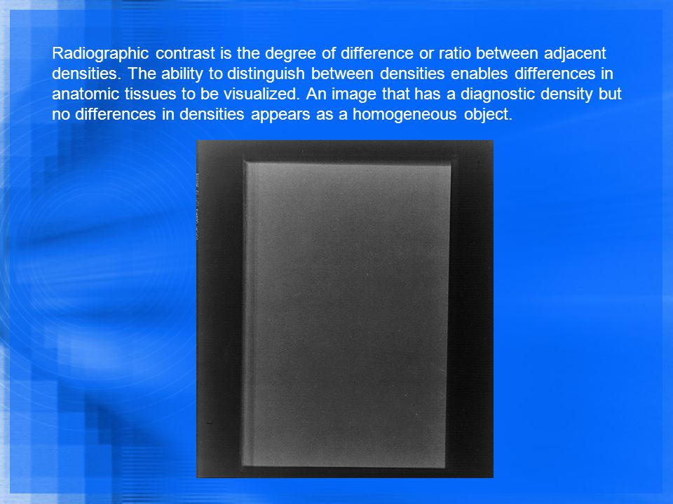 Radiographic contrast is the degree of difference or ratio between adjacent densities. The ability to distinguish between densities enables difference