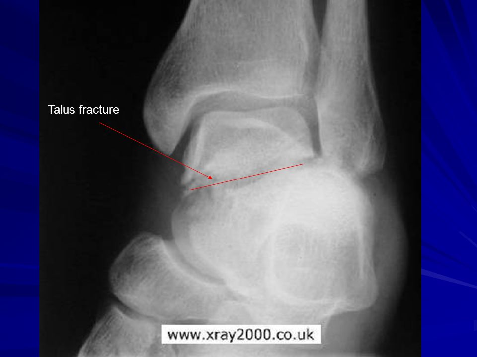 Talus fracture