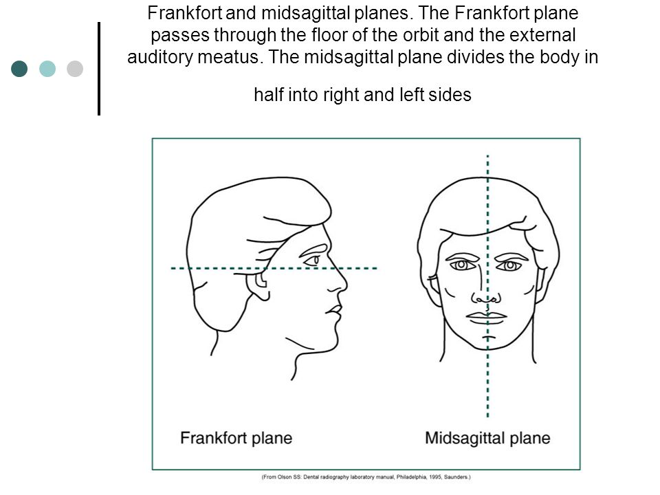 Frankfort and midsagittal planes. The Frankfort plane passes through the floor of the orbit and the external auditory meatus. The midsagittal plane di
