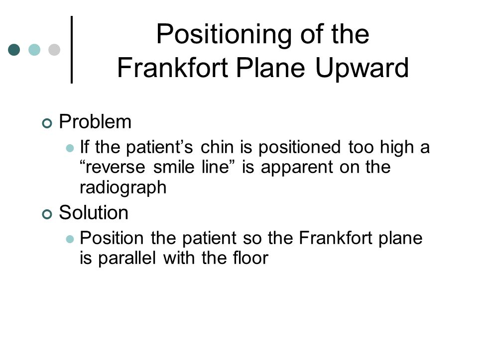 "Positioning of the Frankfort Plane Upward Problem If the patient's chin is positioned too high a ""reverse smile line"" is apparent on the radiograph So"