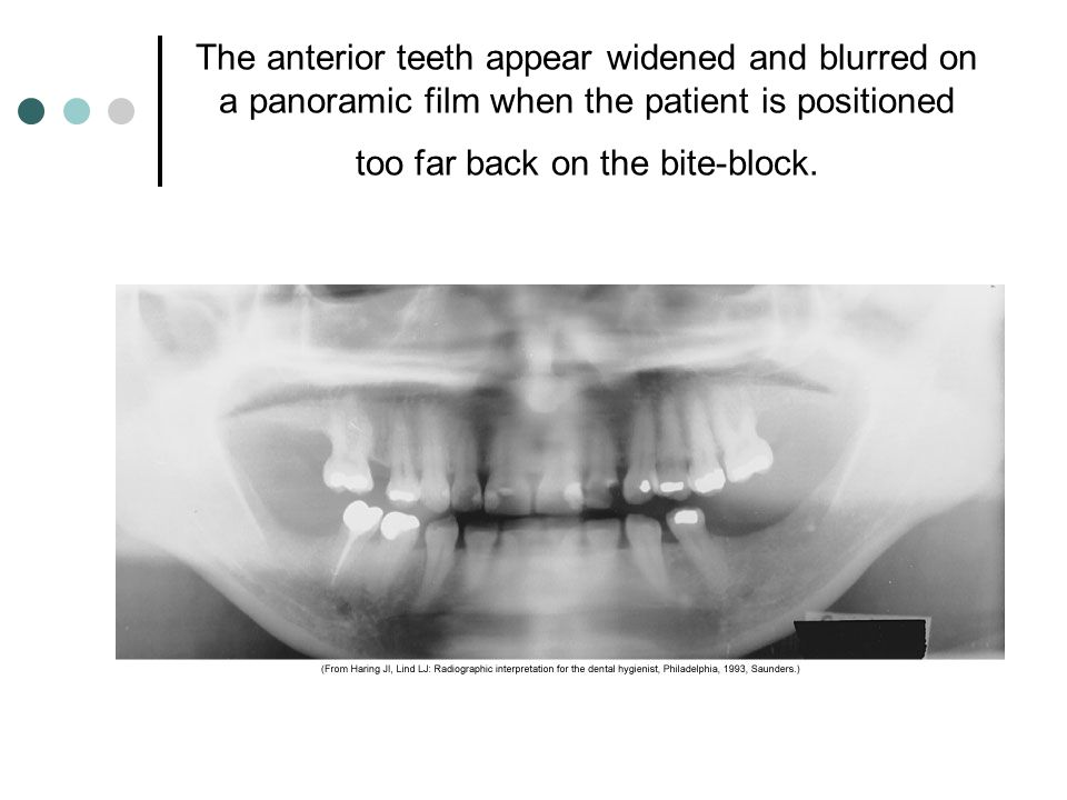 The anterior teeth appear widened and blurred on a panoramic film when the patient is positioned too far back on the bite-block.