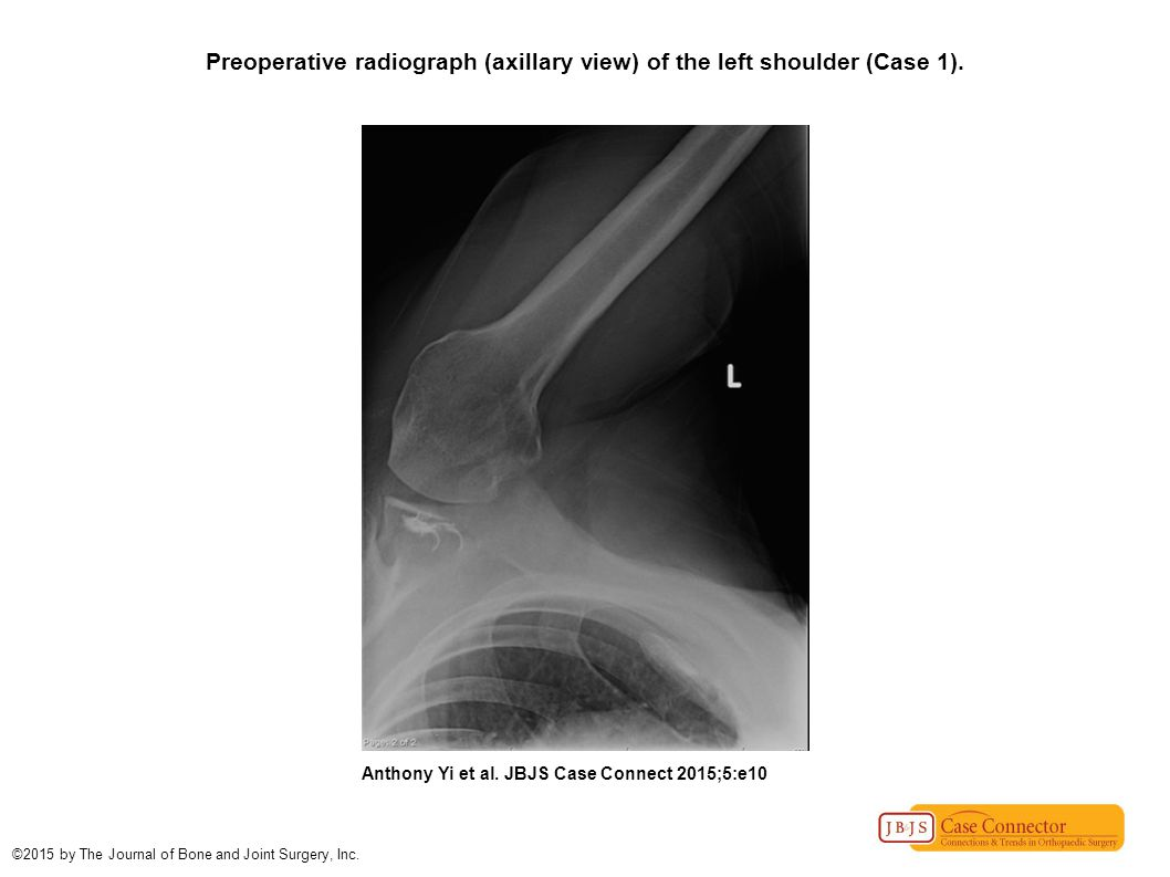 Preoperative radiograph (axillary view) of the left shoulder (Case 1).