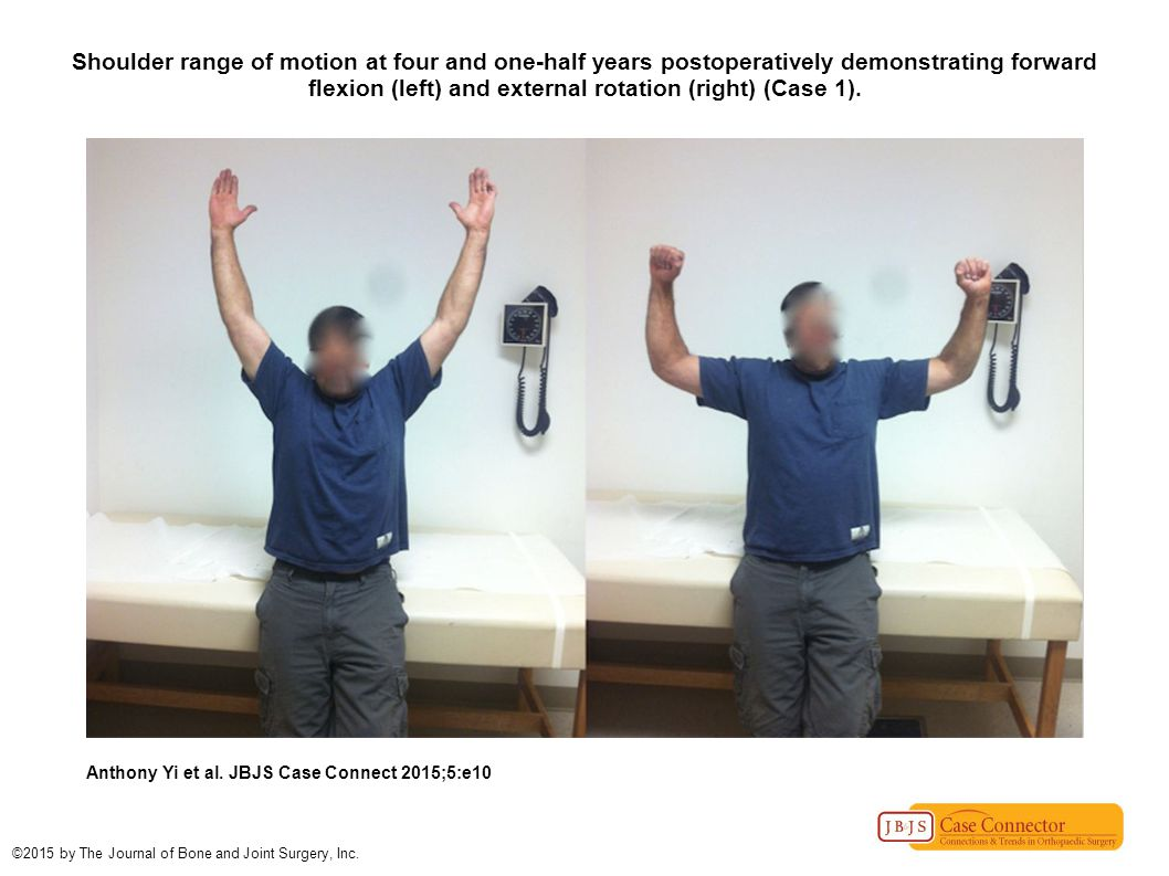 Shoulder range of motion at four and one-half years postoperatively demonstrating forward flexion (left) and external rotation (right) (Case 1).