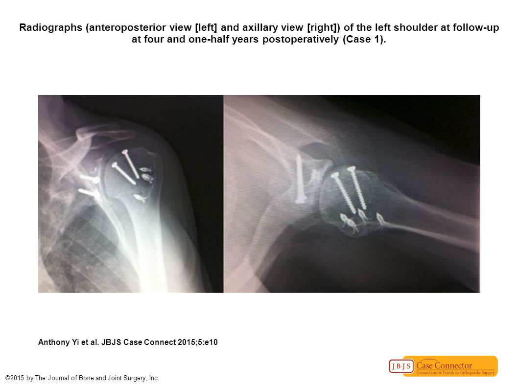 Radiographs (anteroposterior view [left] and axillary view [right]) of the left shoulder at follow-up at four and one-half years postoperatively (Case 1).