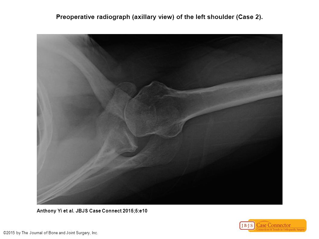 Preoperative radiograph (axillary view) of the left shoulder (Case 2). Anthony Yi et al. JBJS Case Connect 2015;5:e10 ©2015 by The Journal of Bone and
