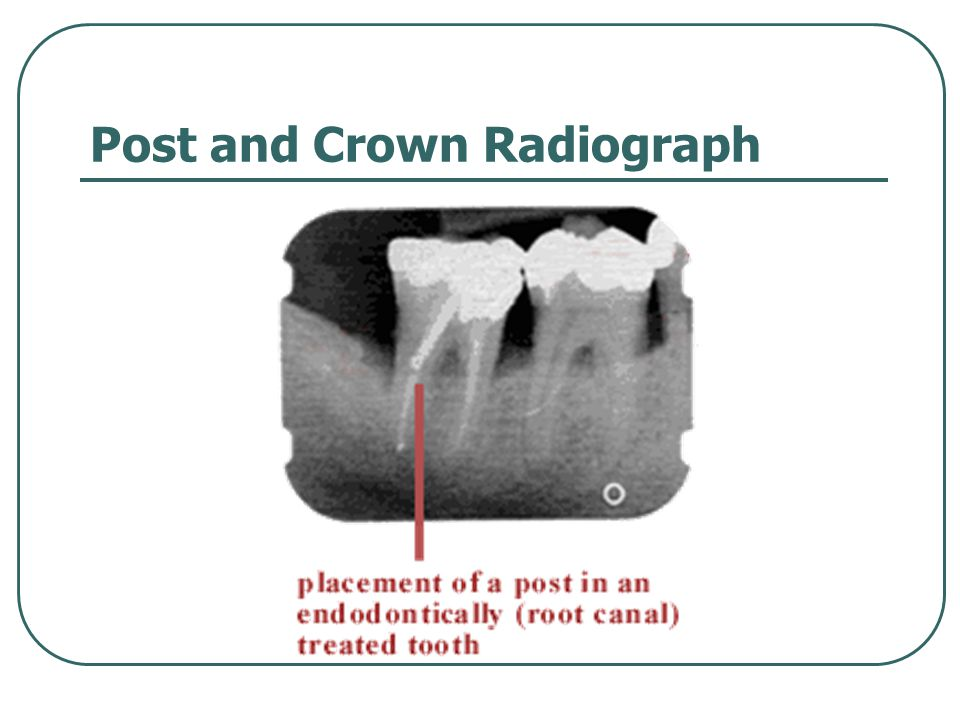 Post and Crown Radiograph