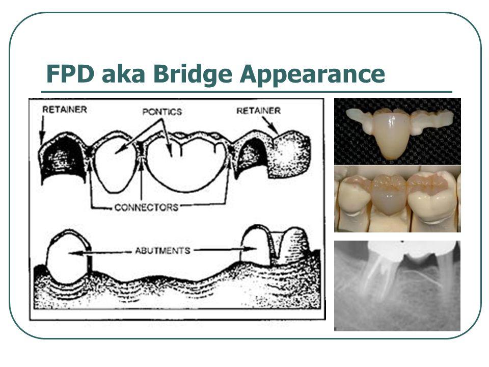 FPD aka Bridge Appearance