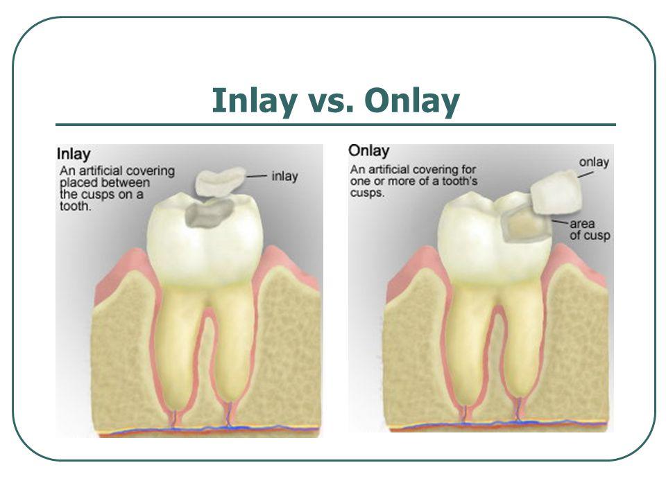 Inlay vs. Onlay