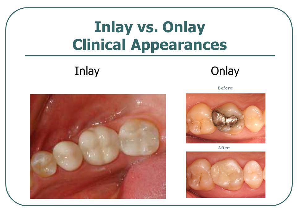 Inlay vs. Onlay Clinical Appearances InlayOnlay