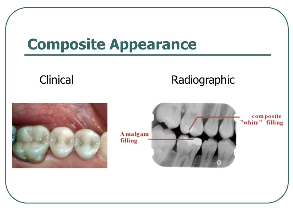 Composite Appearance ClinicalRadiographic