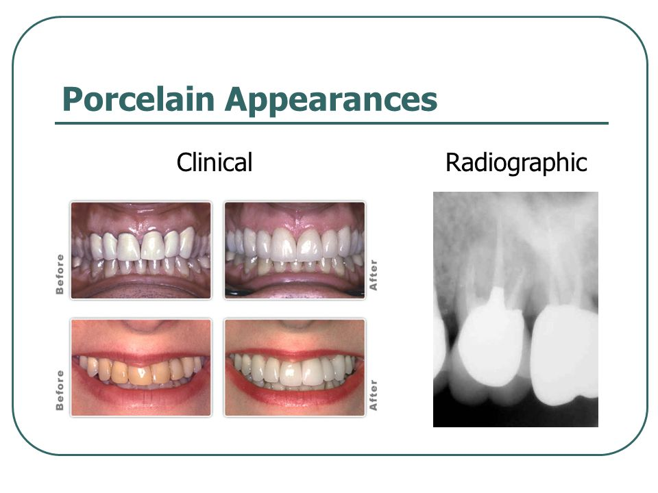 Porcelain Appearances ClinicalRadiographic