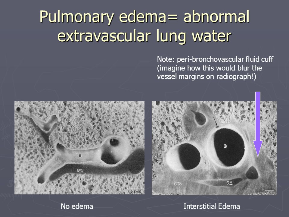 Pulmonary edema= abnormal extravascular lung water No edemaInterstitial Edema Note: peri-bronchovascular fluid cuff (imagine how this would blur the vessel margins on radiograph!)