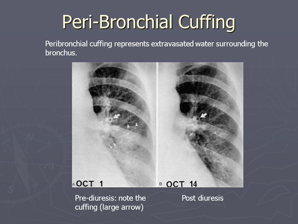 Peri-Bronchial Cuffing Peribronchial cuffing represents extravasated water surrounding the bronchus.