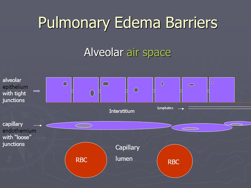 Pulmonary Edema Barriers Pulmonary Edema Barriers Alveolar air space Alveolar air space alveolar epithelium with tight junctions Interstitium lymphatics capillary endothemium with loose junctions RBC Capillary lumen
