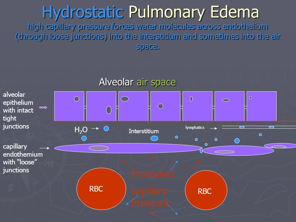 Hydrostatic Pulmonary Edema high capillary pressure forces water molecules across endothelium (through loose junctions) into the interstitium and sometimes into the air space.