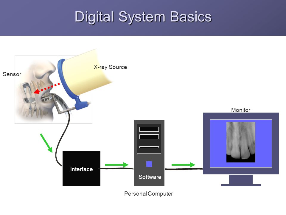 Digital System Basics Interface Monitor Personal Computer Software X-ray Source Sensor
