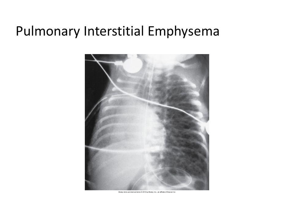 Pulmonary Interstitial Emphysema