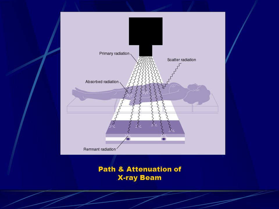 Path & Attenuation of X-ray Beam