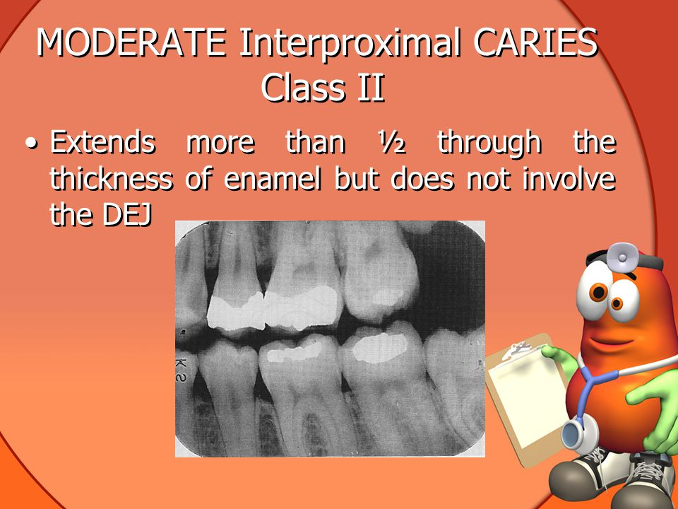 MODERATE Interproximal CARIES Class II Extends more than ½ through the thickness of enamel but does not involve the DEJ