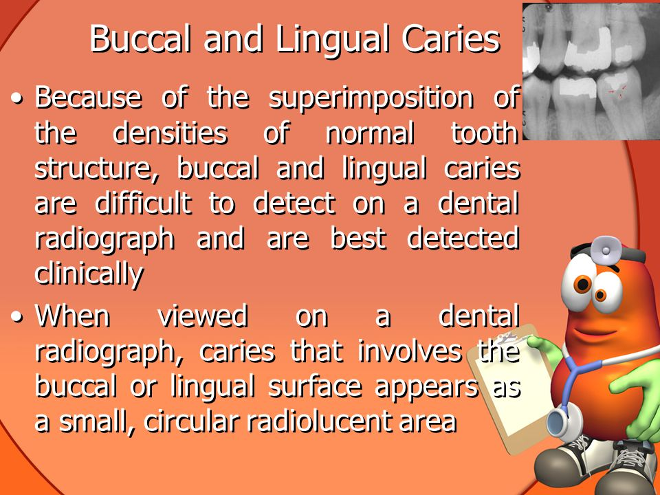 Buccal and Lingual Caries Because of the superimposition of the densities of normal tooth structure, buccal and lingual caries are difficult to detect on a dental radiograph and are best detected clinically When viewed on a dental radiograph, caries that involves the buccal or lingual surface appears as a small, circular radiolucent area Because of the superimposition of the densities of normal tooth structure, buccal and lingual caries are difficult to detect on a dental radiograph and are best detected clinically When viewed on a dental radiograph, caries that involves the buccal or lingual surface appears as a small, circular radiolucent area