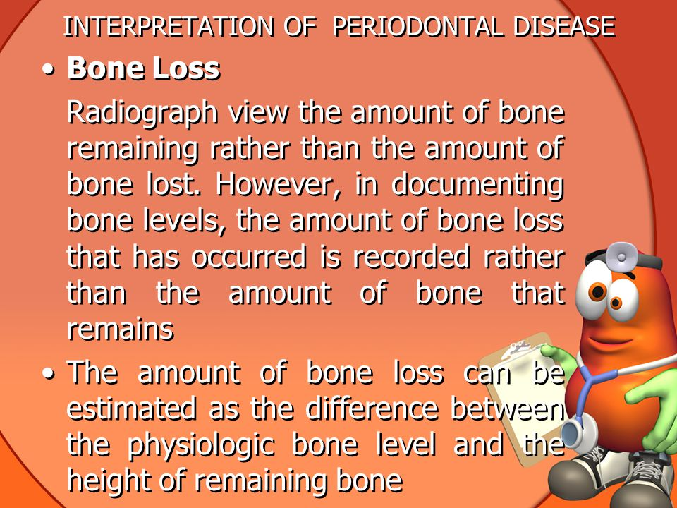 INTERPRETATION OF PERIODONTAL DISEASE Bone Loss Radiograph view the amount of bone remaining rather than the amount of bone lost.