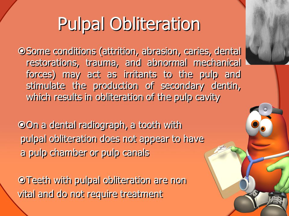 Pulpal Obliteration  Some conditions (attrition, abrasion, caries, dental restorations, trauma, and abnormal mechanical forces) may act as irritants to the pulp and stimulate the production of secondary dentin, which results in obliteration of the pulp cavity  On a dental radiograph, a tooth with pulpal obliteration does not appear to have a pulp chamber or pulp canals  Teeth with pulpal obliteration are non vital and do not require treatment  Some conditions (attrition, abrasion, caries, dental restorations, trauma, and abnormal mechanical forces) may act as irritants to the pulp and stimulate the production of secondary dentin, which results in obliteration of the pulp cavity  On a dental radiograph, a tooth with pulpal obliteration does not appear to have a pulp chamber or pulp canals  Teeth with pulpal obliteration are non vital and do not require treatment