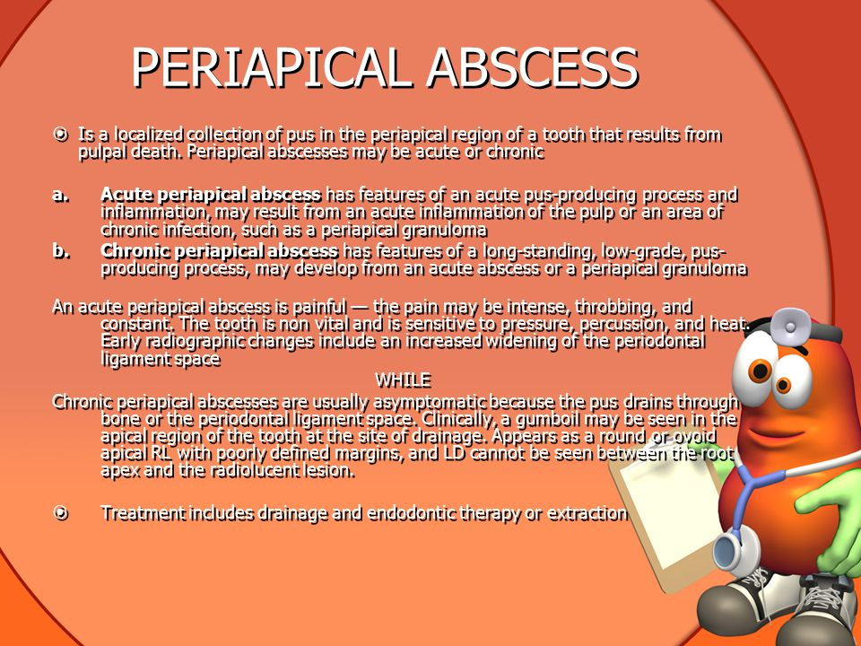 PERIAPICAL ABSCESS  Is a localized collection of pus in the periapical region of a tooth that results from pulpal death. Periapical abscesses may be